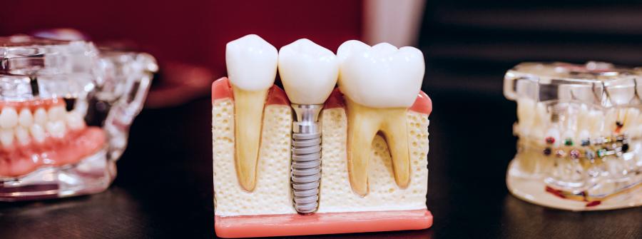 Имплантация зубов, Запорожье
