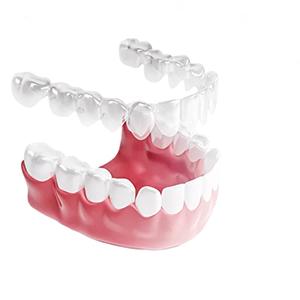 Съемные конструкции для выравнивания зубов