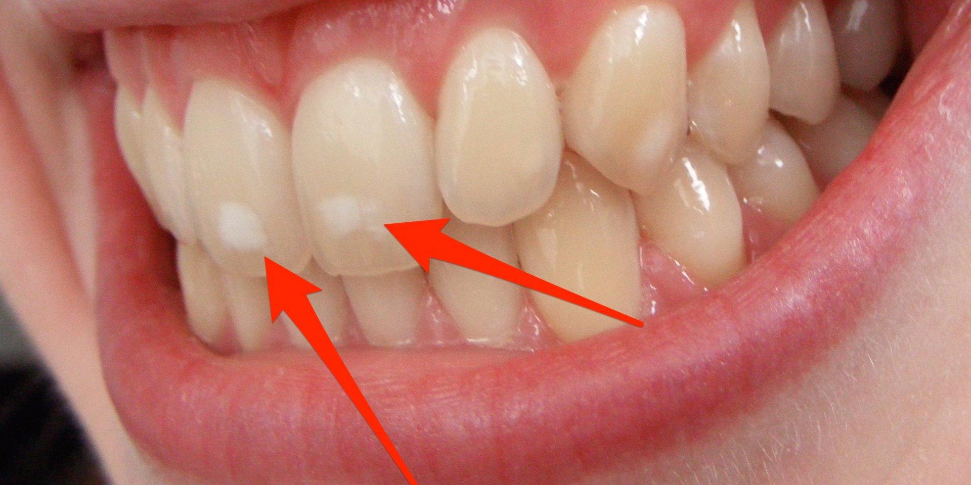 Белый кариес, ЗФ Стоматология