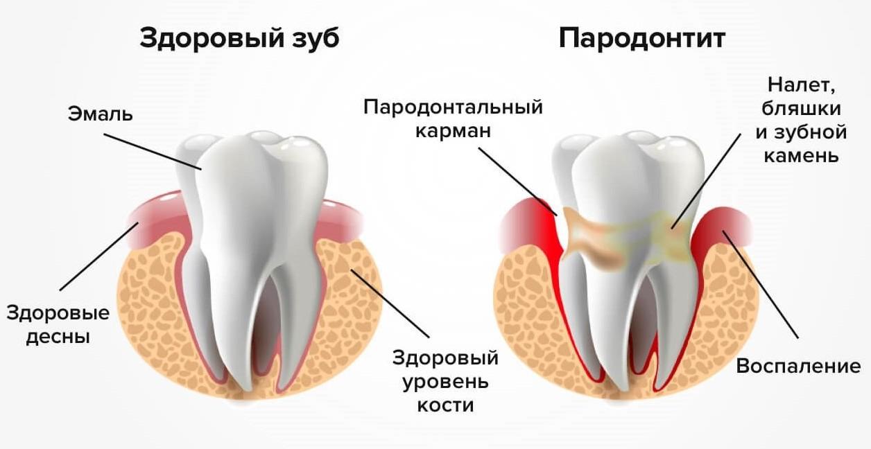 Пародонтоз, ЗФ Стоматология